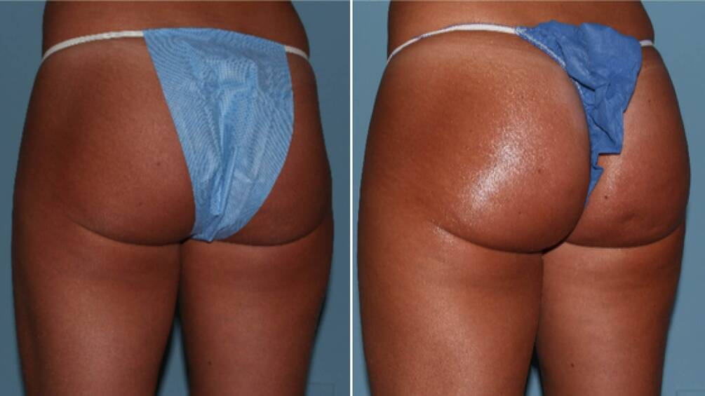Non-Surgical Butt Lift in queens